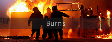 Services-Burns